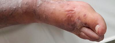 lesiones_arteriales_extremidades