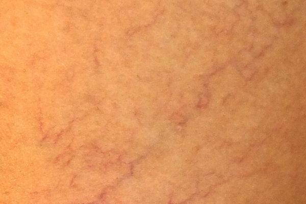 Aranas vasculares pequenas