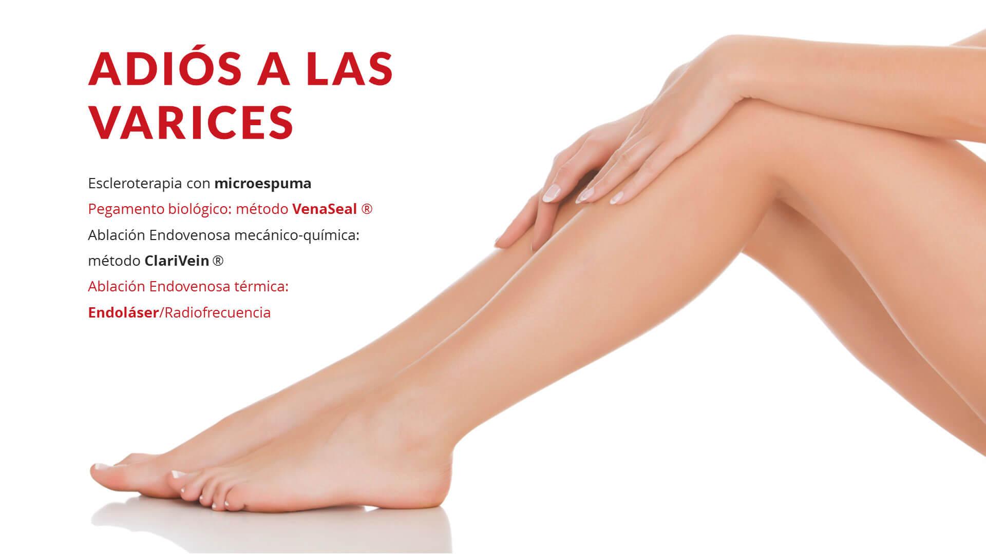 Eliminacion varices sin cirugia Marbella Malaga Cadiz