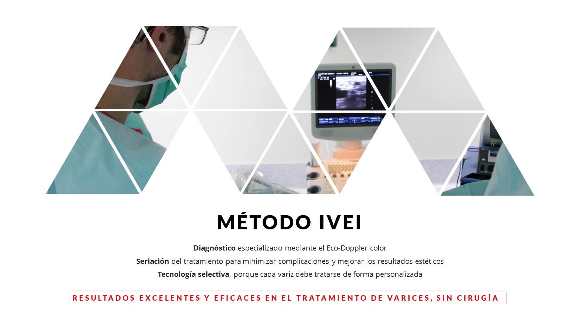 Metodo IVEI tratamiento de varices sin cirugia en Marbella