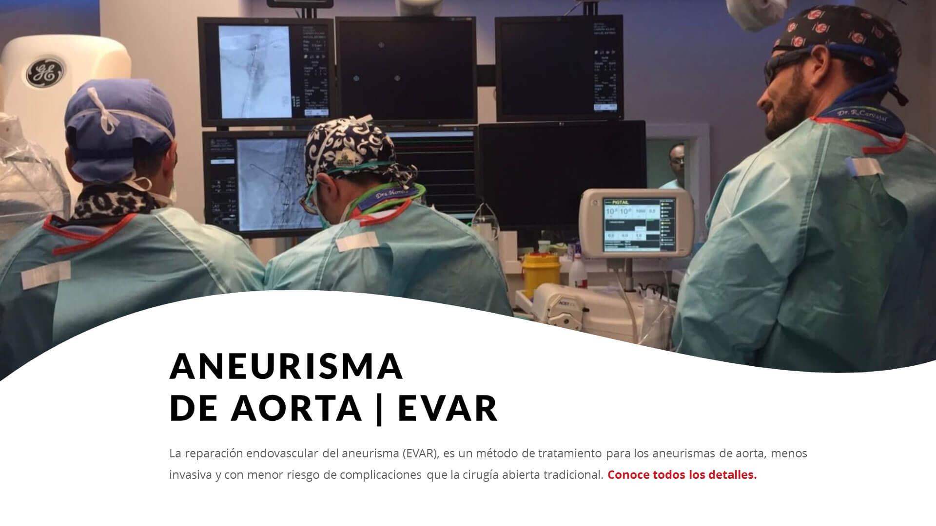 Tratamiento de aorta en Marbella