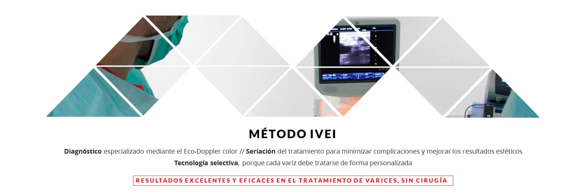 Metodo IVEI Varices sin cirugia